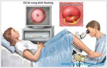 Cách điều trị viêm cổ tử cung hiệu quả tphcm