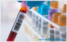 Chi phí xét nghiệm bệnh giang mai tphcm