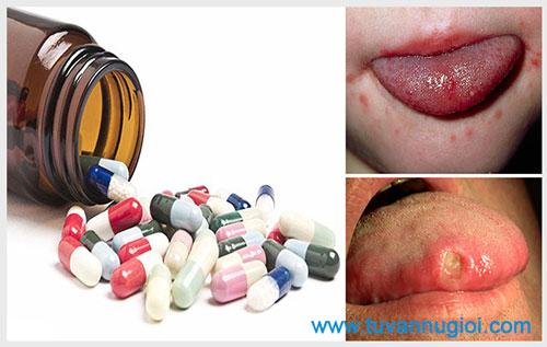Bệnh giang mai ở lưỡi và cách điều trị hiệu quả