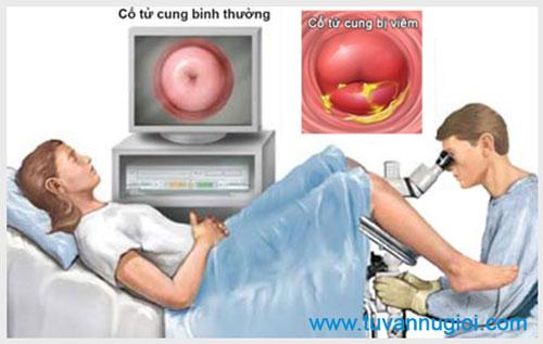 Cách điều trị viêm cổ tử cung hiệu quả