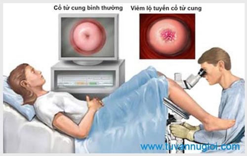 Điều trị viêm lộ tuyến cổ tử cung ở đâu tốt nhất tại TPHCM ?