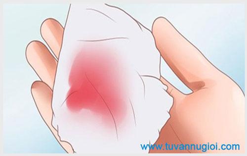 Hiện tượng ra chất dịch nhầy màu hồng là bệnh gì?