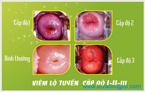 Nguyên nhân gây ra viêm lộ tuyến cổ tử cung ở nữ giới