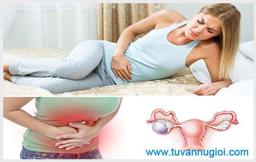 Triệu chứng nhận biết vỡ u nang buồng trứng